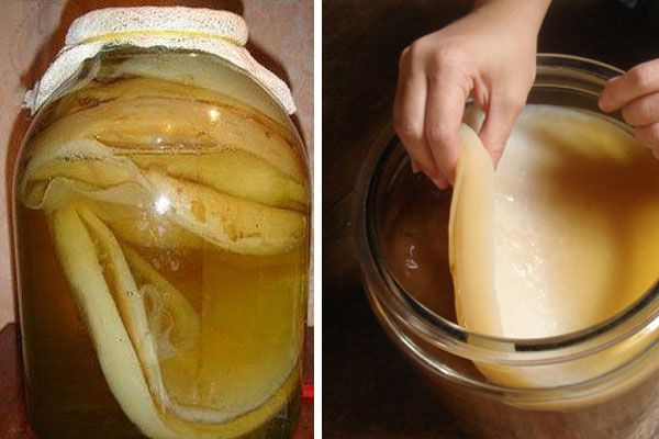 Разрастание чайного гриба